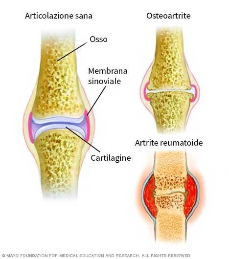 differenza artrite reumatoide e osteoartrite